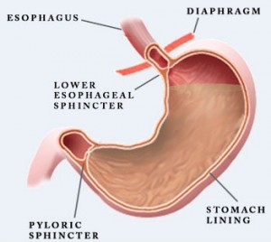 Gastroesophageal Sphincter Causes and Symptoms of...